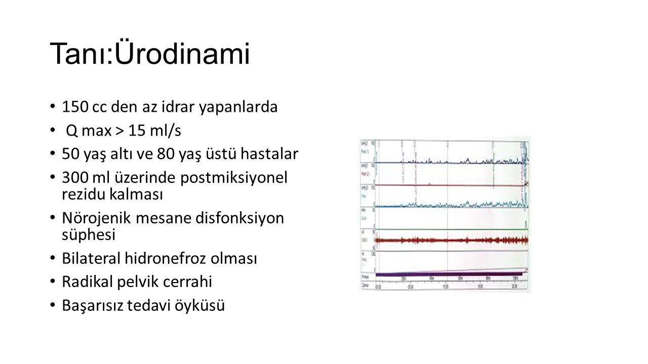 Tanı:Ürodinami 150 cc den az idrar yapanlarda Q max > 15 ml/s 50 yaş altı ve 80 yaş üstü hastalar 300 ml üzerinde postmiksiyonel rezidu kalması Nöroje