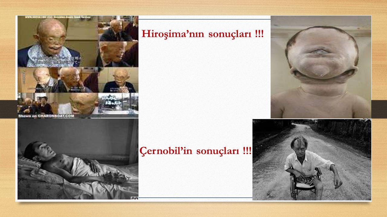 Hiroşima'nın sonuçları !!! Çernobil'in sonuçları !!!