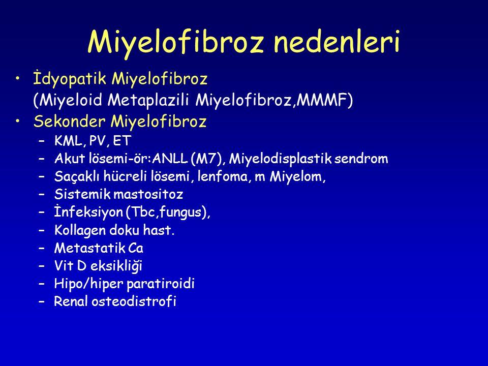 Miyelofibroz nedenleri İdyopatik Miyelofibroz (Miyeloid Metaplazili Miyelofibroz,MMMF) Sekonder Miyelofibroz –KML, PV, ET –Akut lösemi-ör:ANLL (M7), Miyelodisplastik sendrom –Saçaklı hücreli lösemi, lenfoma, m Miyelom, –Sistemik mastositoz –İnfeksiyon (Tbc,fungus), –Kollagen doku hast.