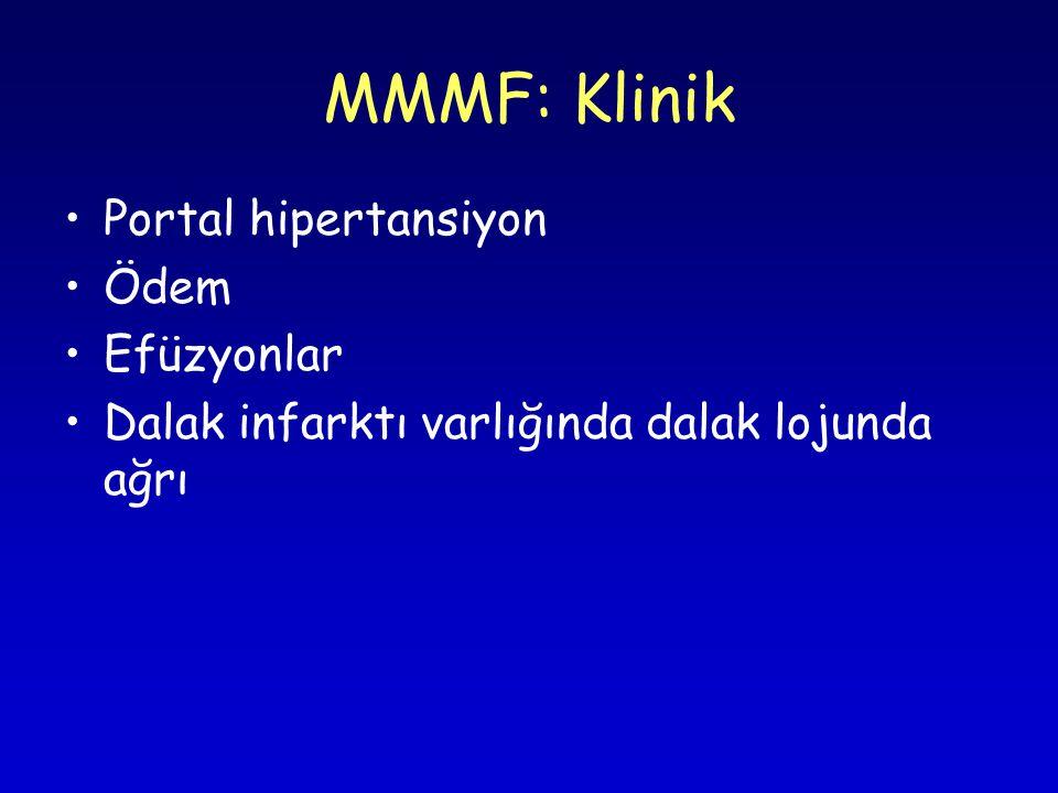 MMMF: Klinik Portal hipertansiyon Ödem Efüzyonlar Dalak infarktı varlığında dalak lojunda ağrı