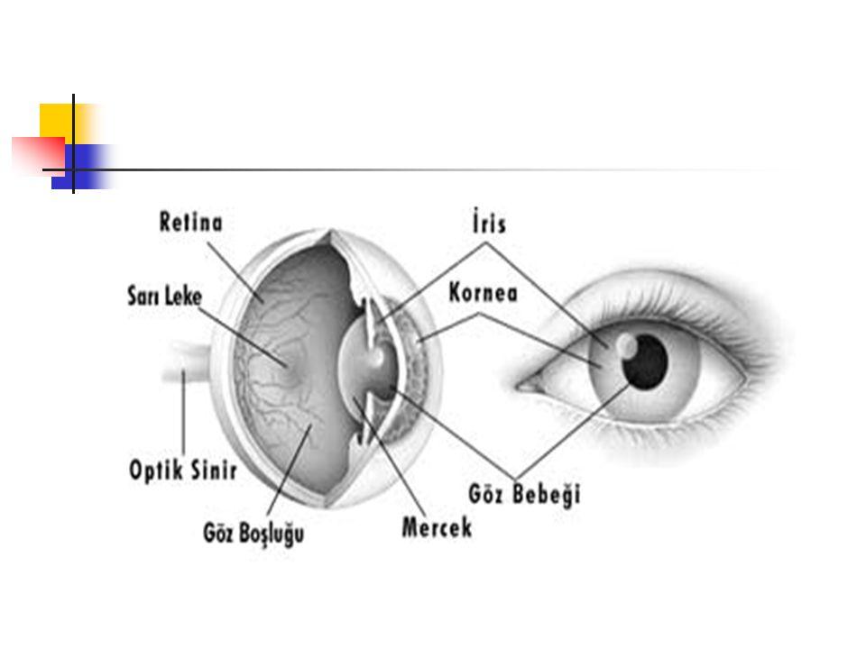 1.GURUPTAKİ ETMENLERDEN OLUŞAN GÖRME YETERSİZLİKLERİ ŞUNLARDIR: KATARAKT :Göz merceğinin saydamlığını yitirmesiyle oluşur.