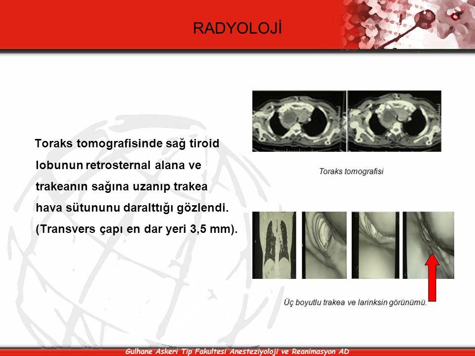 RADYOLOJİ Toraks tomografisinde sağ tiroid lobunun retrosternal alana ve trakeanın sağına uzanıp trakea hava sütununu daralttığı gözlendi. (Transvers