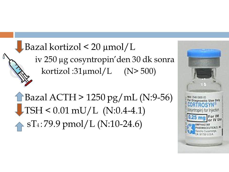 Bazal kortizol < 20 µmol/L iv 250 µg cosyntropin'den 30 dk sonra kortizol :31µmol/L (N> 500) Bazal ACTH > 1250 pg/mL (N:9-56) TSH < 0.01 mU/L (N:0.4-4