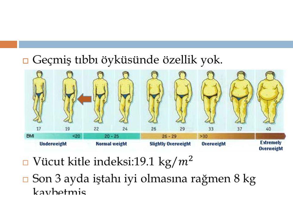  Antikor taramasında bizim hastamızda adrenal otoantikorlar negatif, tiroid otoankikorları pozitiftir.