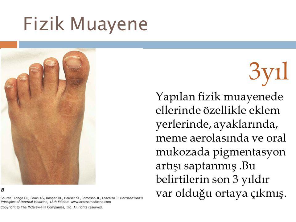 Fizik Muayene 3yıl Yapılan fizik muayenede ellerinde özellikle eklem yerlerinde, ayaklarında, meme aerolasında ve oral mukozada pigmentasyon artışı sa