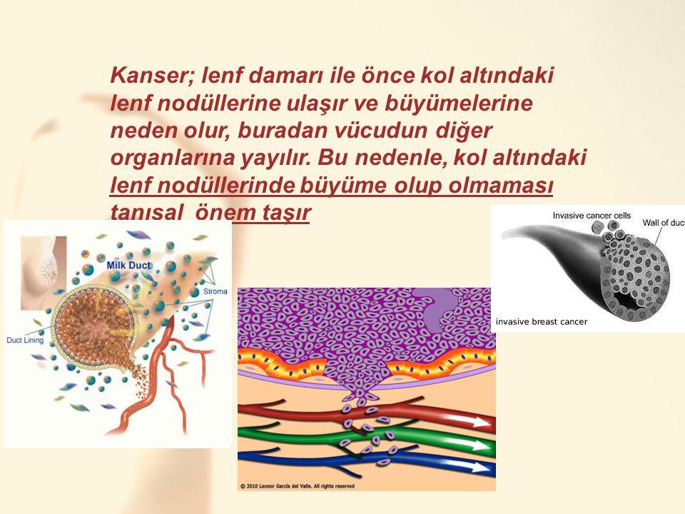 Kanser; lenf damarı ile önce kol altındaki lenf nodüllerine ulaşır ve büyümelerine neden olur, buradan vücudun diğer organlarına yayılır. Bu nedenle,