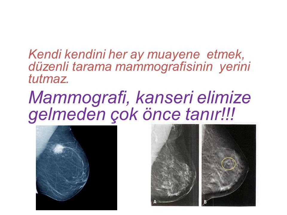 Kendi kendini her ay muayene etmek, düzenli tarama mammografisinin yerini tutmaz. Mammografi, kanseri elimize gelmeden çok önce tanır!!!