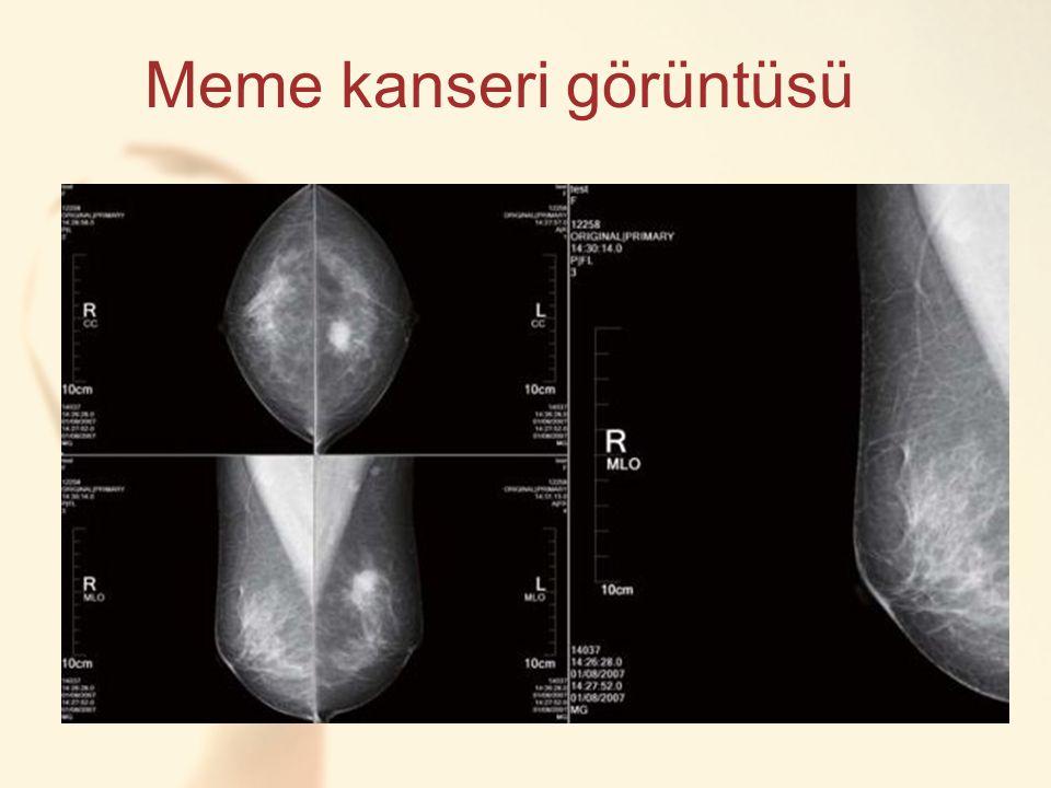 CC Meme kanseri görüntüsü