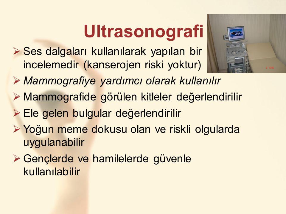 Ultrasonografi  Ses dalgaları kullanılarak yapılan bir incelemedir (kanserojen riski yoktur)  Mammografiye yardımcı olarak kullanılır  Mammografide