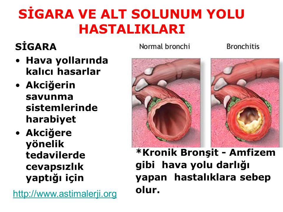 Sigara içenlerin % 50'sinde kronik bronşit vardır Bronşitli hastalarda önce sabah öksürüğü ve balgam başlar Daha sonraki yıllarda nefes darlığı, solunum yetmezliği ve kalp yetmezliği gelişir http://www.astimalerji.org