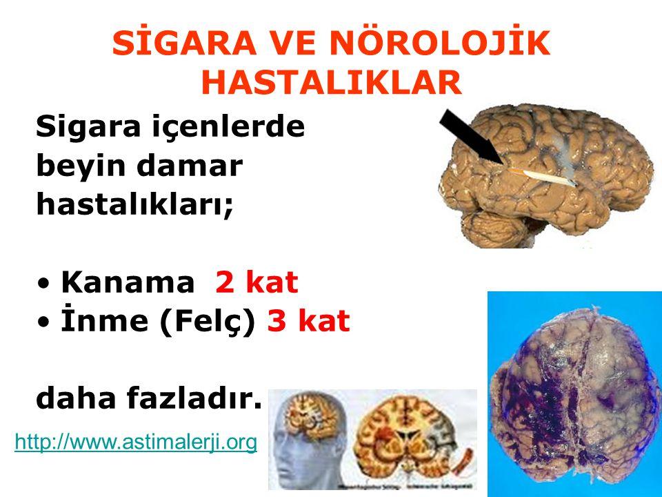 SİGARA VE NÖROLOJİK HASTALIKLAR Sigara içenlerde beyin damar hastalıkları; Kanama 2 kat İnme (Felç) 3 kat daha fazladır. http://www.astimalerji.org
