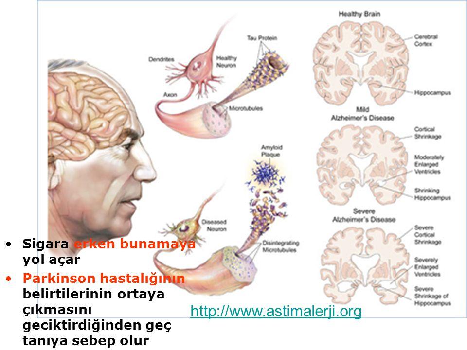 Sigara erken bunamaya yol açar Parkinson hastalığının belirtilerinin ortaya çıkmasını geciktirdiğinden geç tanıya sebep olur http://www.astimalerji.org