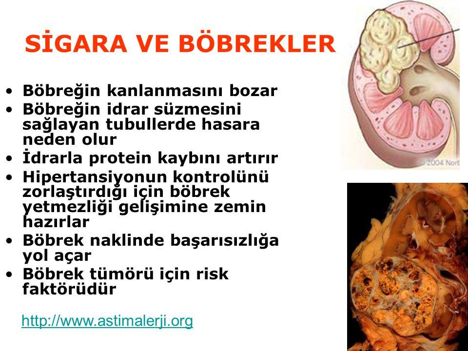 SİGARA VE BÖBREKLER Böbreğin kanlanmasını bozar Böbreğin idrar süzmesini sağlayan tubullerde hasara neden olur İdrarla protein kaybını artırır Hipertansiyonun kontrolünü zorlaştırdığı için böbrek yetmezliği gelişimine zemin hazırlar Böbrek naklinde başarısızlığa yol açar Böbrek tümörü için risk faktörüdür http://www.astimalerji.org