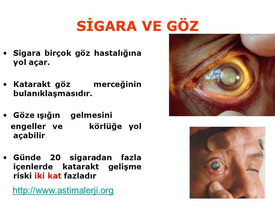 SİGARA VE GÖZ Sigara birçok göz hastalığına yol açar. Katarakt göz merceğinin bulanıklaşmasıdır. Göze ışığın gelmesini engeller ve körlüğe yol açabili