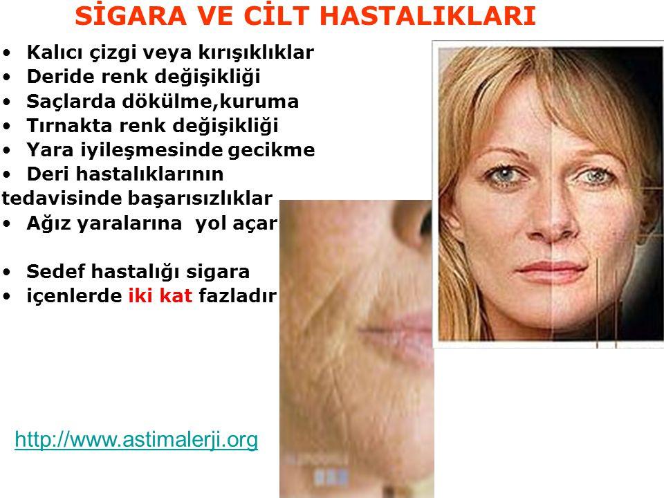 SİGARA VE CİLT HASTALIKLARI Kalıcı çizgi veya kırışıklıklar Deride renk değişikliği Saçlarda dökülme,kuruma Tırnakta renk değişikliği Yara iyileşmesinde gecikme Deri hastalıklarının tedavisinde başarısızlıklar Ağız yaralarına yol açar Sedef hastalığı sigara içenlerde iki kat fazladır http://www.astimalerji.org