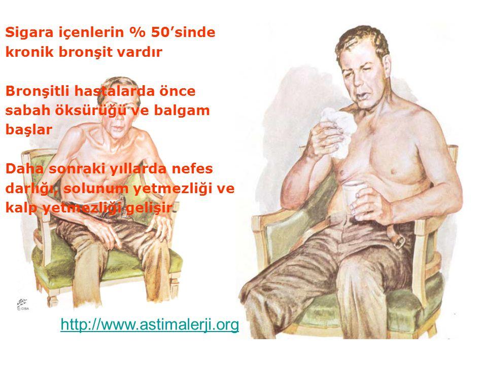 SİGARA VE ENDOKRİN SİSTEM Sigara içenlerde diyabet gelişme riski 1.4 - 3.3 kat artmaktadır Sigara içen diyabetiklerin böbrek tutulum riski içmeyenlerden fazladır Sigara içenlerde guatr görülme sıklığı yüksektir http://www.astimalerji.org