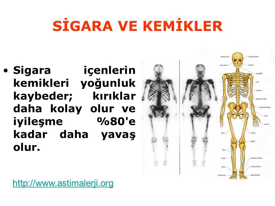 SİGARA VE KEMİKLER Sigara içenlerin kemikleri yoğunluk kaybeder; kırıklar daha kolay olur ve iyileşme %80'e kadar daha yavaş olur. http://www.astimale