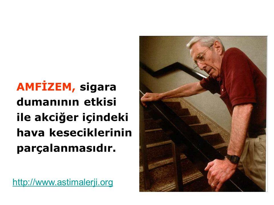 AMFİZEM, sigara dumanının etkisi ile akciğer içindeki hava keseciklerinin parçalanmasıdır. http://www.astimalerji.org