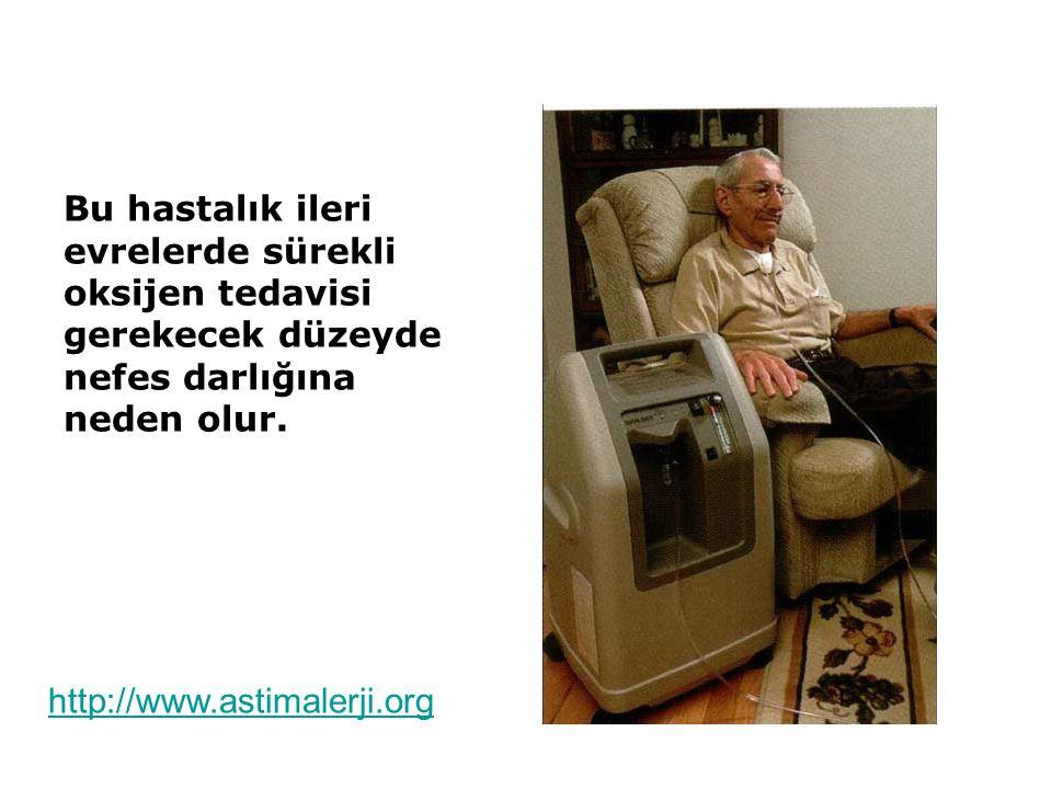 Bu hastalık ileri evrelerde sürekli oksijen tedavisi gerekecek düzeyde nefes darlığına neden olur. http://www.astimalerji.org