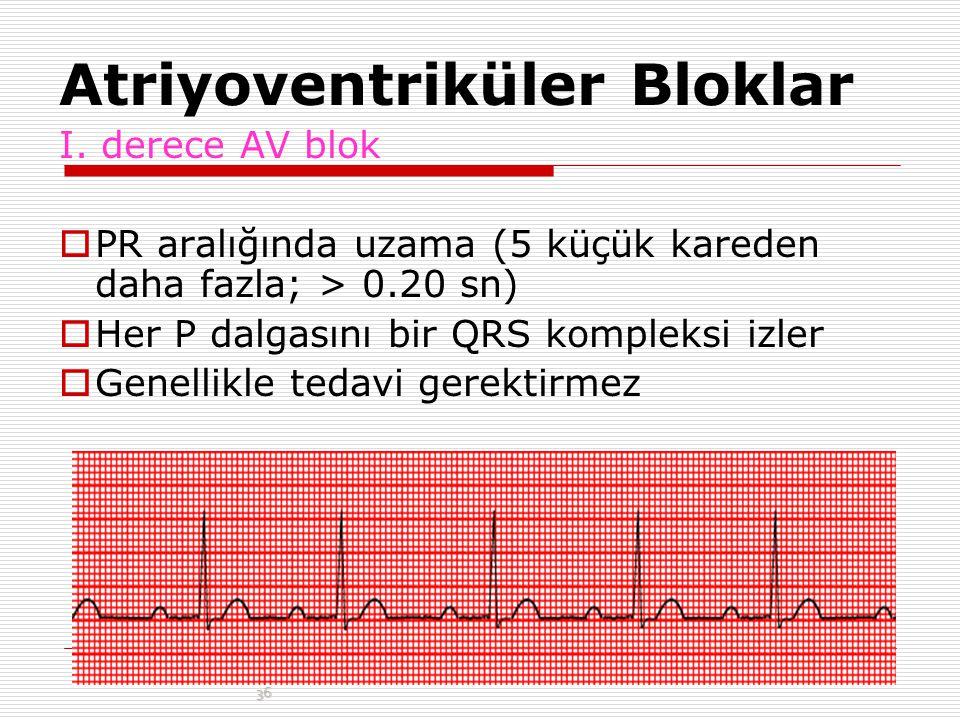 SİNÜS BRADİKARDİSİ  Kalp hızı 40-50/dak altına inmedikçe ve hipoperfüzyon bulguları ortaya çıkmadıkça tedavi gerektirmez.  Tedavi: Atropin (0.5 mg)