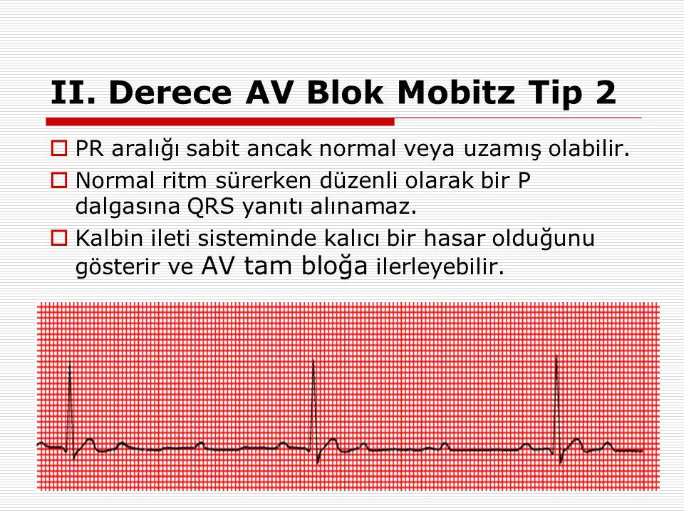37 II. Derece AV Blok Mobitz Tip I (Wenckebach Fenomeni) Progresif PR uzaması PR uzaması, bir P dalgasına QRS yanıtı oluşmayana kadar devam eder. Bir