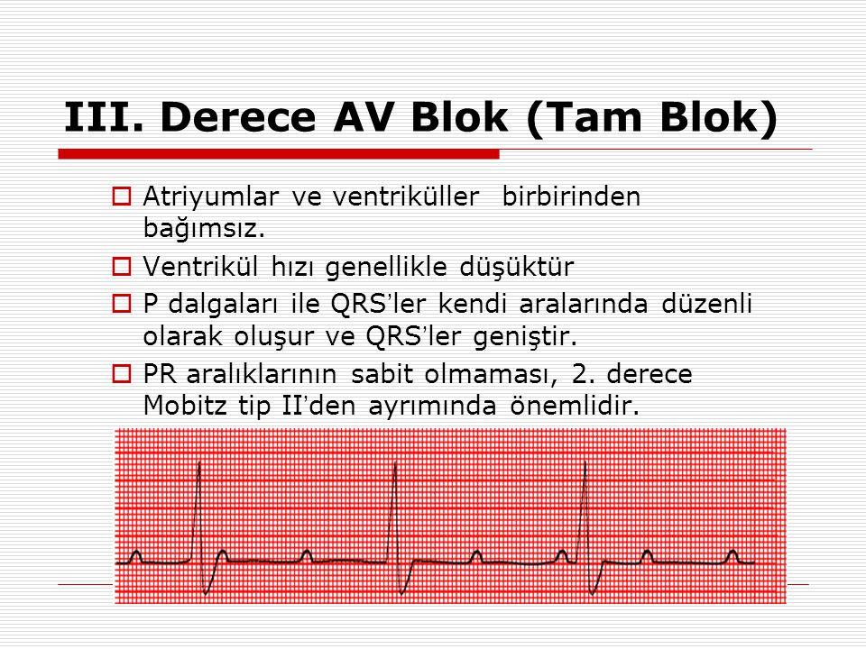II. Derece AV Blok Mobitz Tip 2  PR aralığı sabit ancak normal veya uzamış olabilir.  Normal ritm sürerken düzenli olarak bir P dalgasına QRS yanıtı