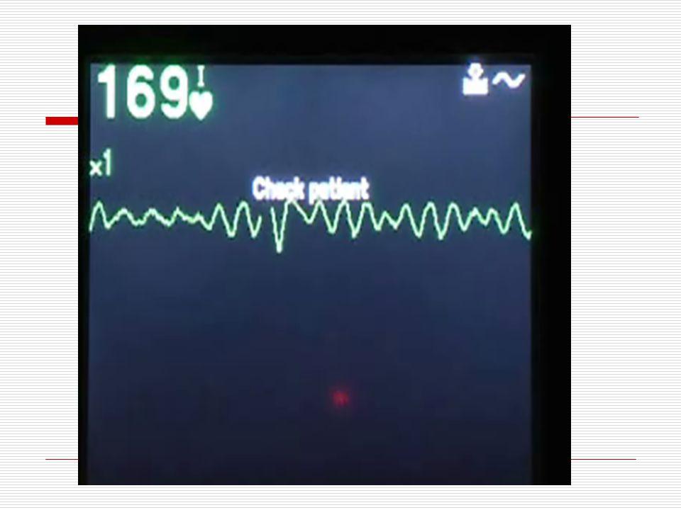 Olgu 1  39 yaşında erkek hasta  Futbol maçı sırasında retrosternal göğüs ağrısı  Bakı birimine alınır, EKG çekimi sırasında  Hastanın bilinci kapa