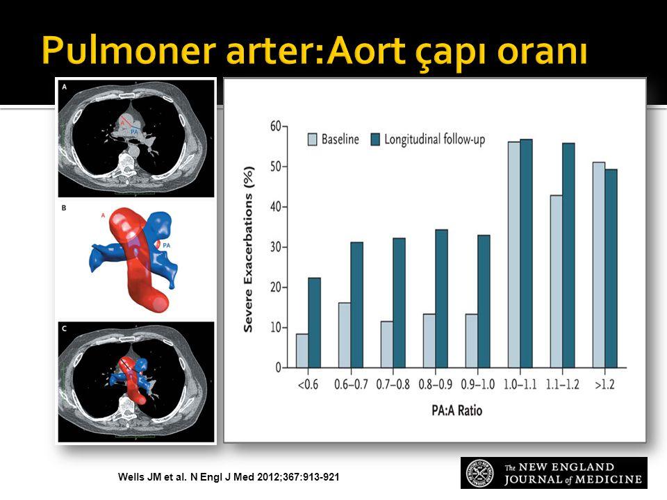 Wells JM et al. N Engl J Med 2012;367:913-921