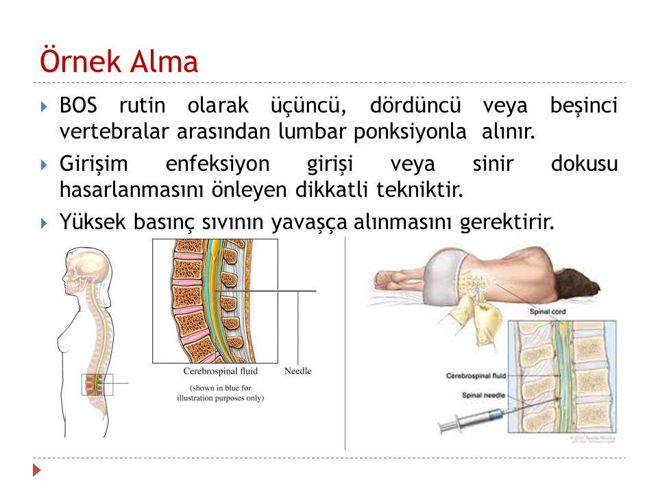 Örnek Alma  BOS rutin olarak üçüncü, dördüncü veya beşinci vertebralar arasından lumbar ponksiyonla alınır.
