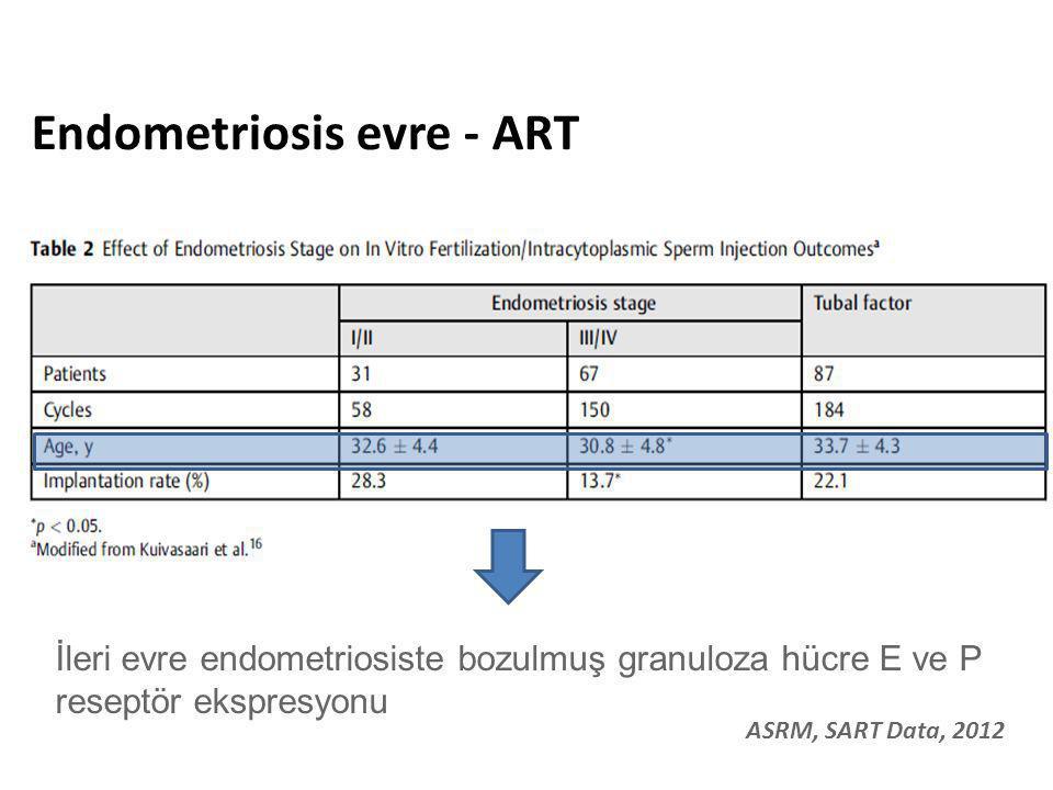 Endometriosis evre - ART İleri evre endometriosiste bozulmuş granuloza hücre E ve P reseptör ekspresyonu ASRM, SART Data, 2012