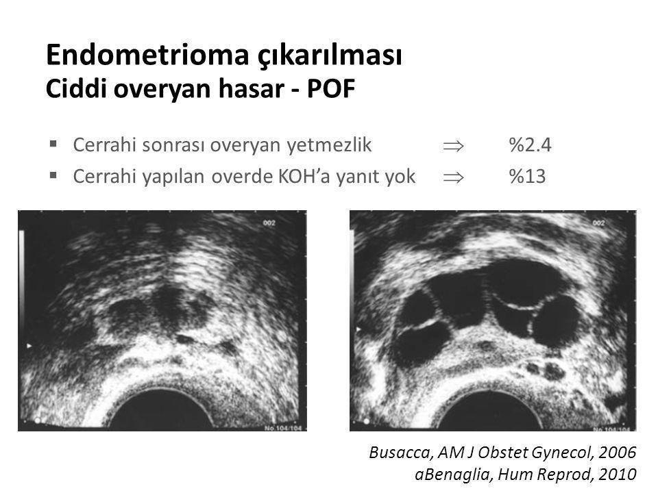 Endometrioma çıkarılması Ciddi overyan hasar - POF  Cerrahi sonrası overyan yetmezlik  %2.4  Cerrahi yapılan overde KOH'a yanıt yok  %13 Busacca, AM J Obstet Gynecol, 2006 aBenaglia, Hum Reprod, 2010