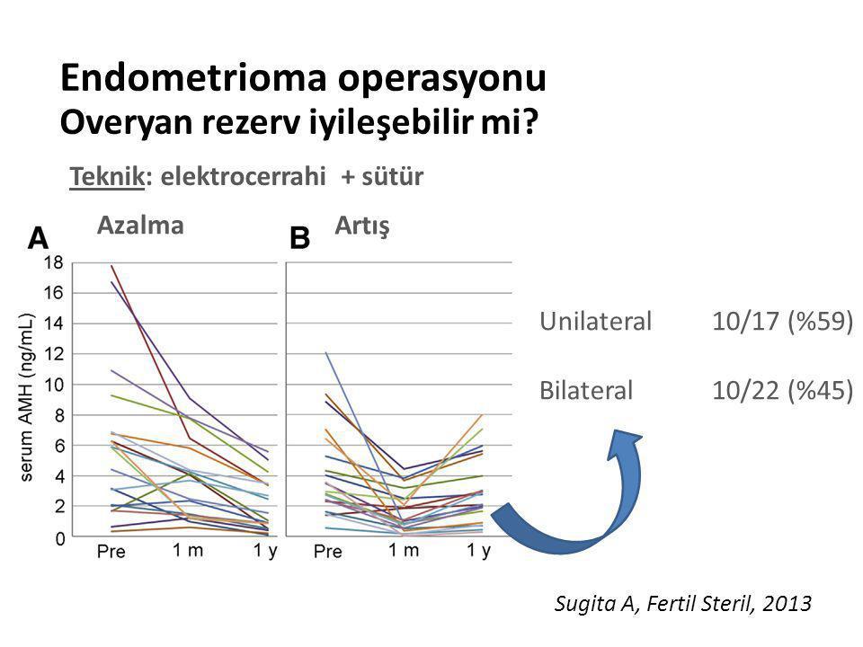 Endometrioma operasyonu Overyan rezerv iyileşebilir mi? Sugita A, Fertil Steril, 2013 Unilateral 10/17 (%59) Bilateral 10/22 (%45) Azalma Artış Teknik