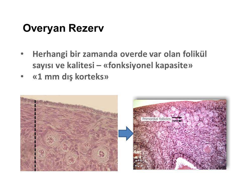 Kistektomi Hangi Cerrahi Teknik Kistektomi vs Koagulasyon Ablazyon Overyan hasarRekürens