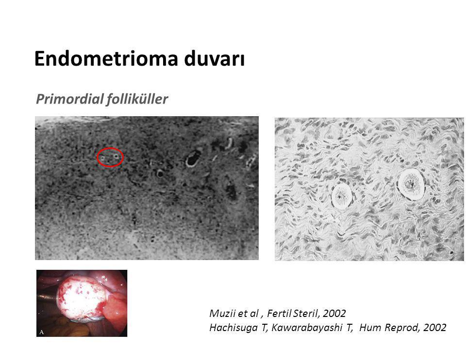 < 35 yaş > 35 yaş < 35 yaş > 35 yaş Endometriotik ve diğer kistlerde folikül dansitesi Koruda, J Obstet Gynecol Res, 2012 «Sağlıklı dokuda folikül dansitesi endometriomalarda daha az»