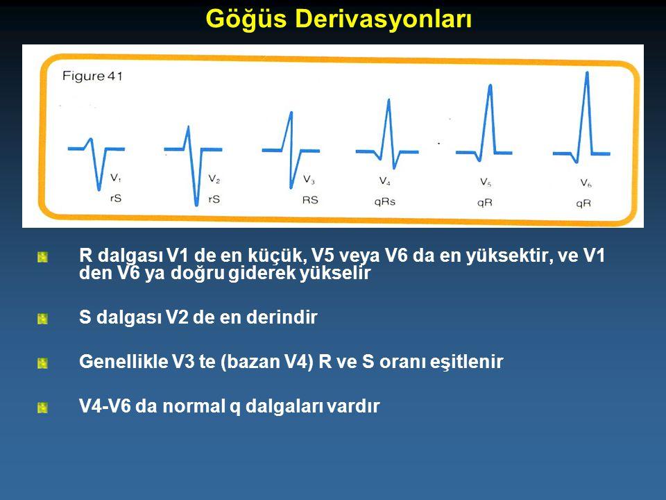 R dalgası V1 de en küçük, V5 veya V6 da en yüksektir, ve V1 den V6 ya doğru giderek yükselir S dalgası V2 de en derindir Genellikle V3 te (bazan V4) R