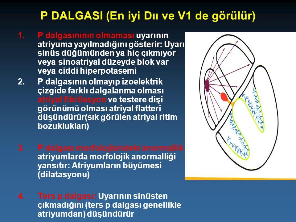 P DALGASI (En iyi Dıı ve V1 de görülür) 1.P dalgasınının olmaması uyarının atriyuma yayılmadığını gösterir: Uyarı sinüs düğümünden ya hiç çıkmıyor vey