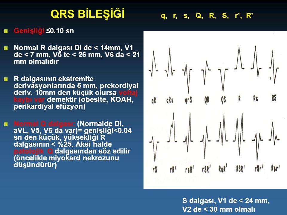 QRS BİLEŞİĞİ Genişliği ≤0.10 sn Normal R dalgası DI de < 14mm, V1 de < 7 mm, V5 te < 26 mm, V6 da < 21 mm olmalıdır R dalgasının ekstremite derivasyon