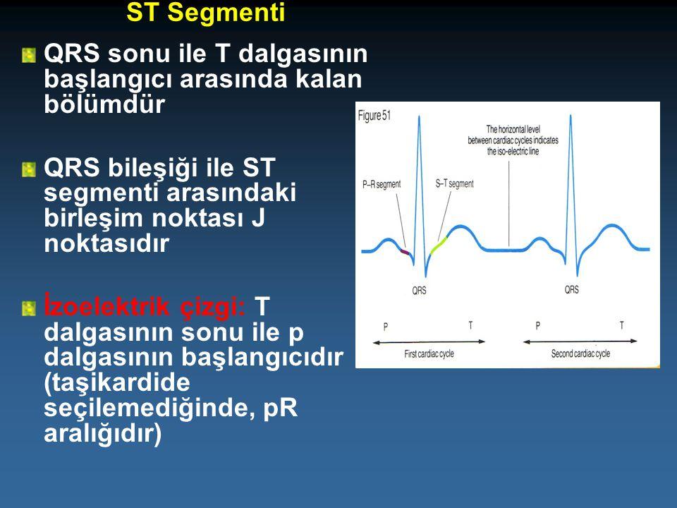 ST Segmenti QRS sonu ile T dalgasının başlangıcı arasında kalan bölümdür QRS bileşiği ile ST segmenti arasındaki birleşim noktası J noktasıdır İzoelek
