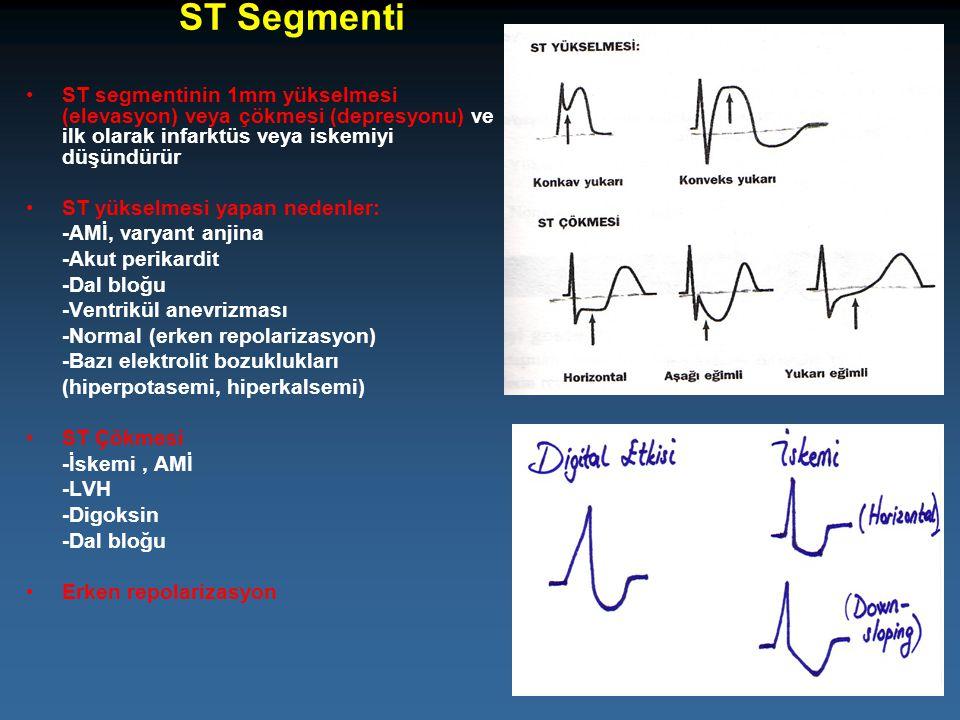 ST Segmenti ST segmentinin 1mm yükselmesi (elevasyon) veya çökmesi (depresyonu) ve ilk olarak infarktüs veya iskemiyi düşündürür ST yükselmesi yapan n