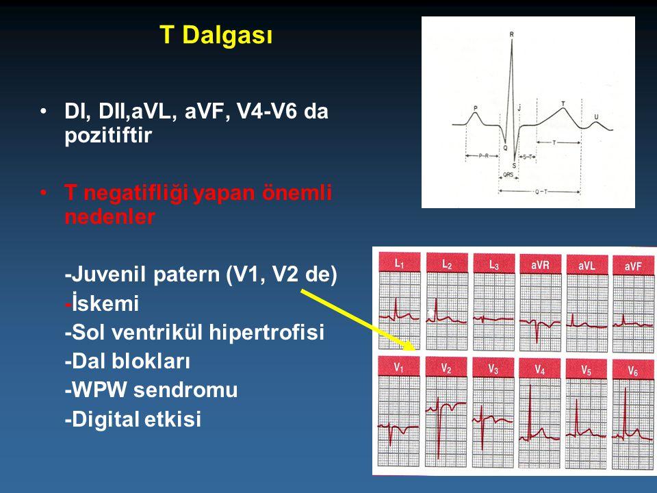 T Dalgası DI, DII,aVL, aVF, V4-V6 da pozitiftir T negatifliği yapan önemli nedenler -Juvenil patern (V1, V2 de) -İskemi -Sol ventrikül hipertrofisi -D