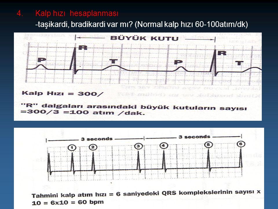 4.Kalp hızı hesaplanması -taşikardi, bradikardi var mı? (Normal kalp hızı 60-100atım/dk)