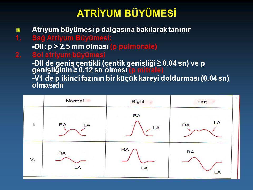 ATRİYUM BÜYÜMESİ Atriyum büyümesi p dalgasına bakılarak tanınır 1.Sağ Atriyum Büyümesi: -DII: p > 2.5 mm olması (p pulmonale) 2.Sol atriyum büyümesi -