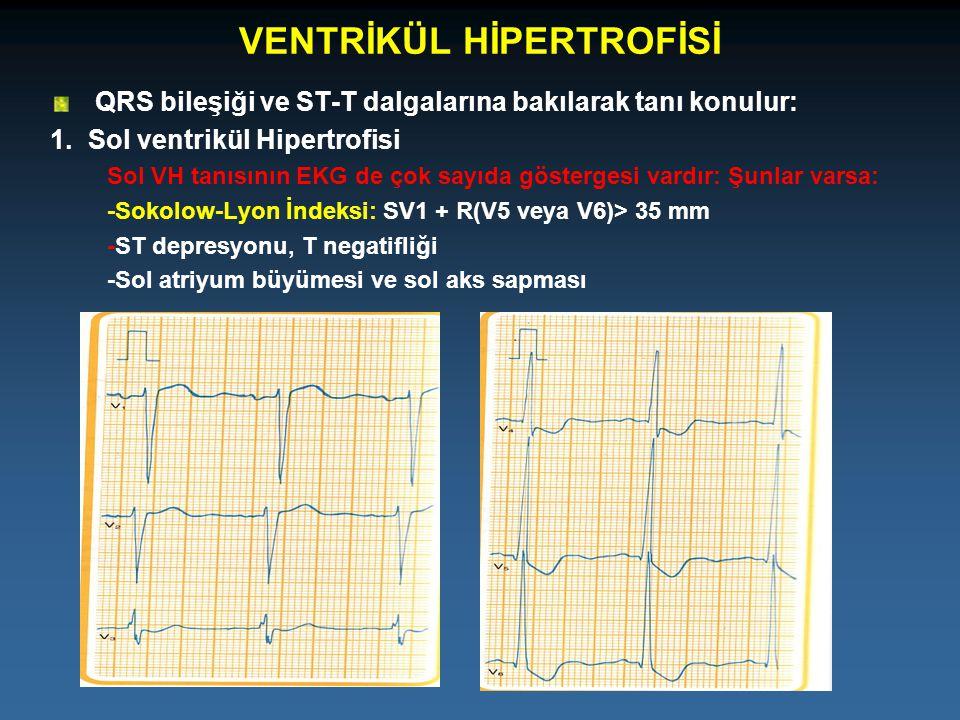 VENTRİKÜL HİPERTROFİSİ QRS bileşiği ve ST-T dalgalarına bakılarak tanı konulur: 1.Sol ventrikül Hipertrofisi Sol VH tanısının EKG de çok sayıda göster