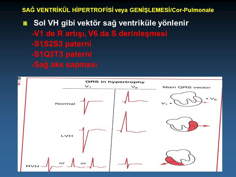 SAĞ VENTRİKÜL HİPERTROFİSİ veya GENİŞLEMESİ/Cor-Pulmonale Sol VH gibi vektör sağ ventriküle yönlenir -V1 de R artışı, V6 da S derinleşmesi -S1S2S3 pat