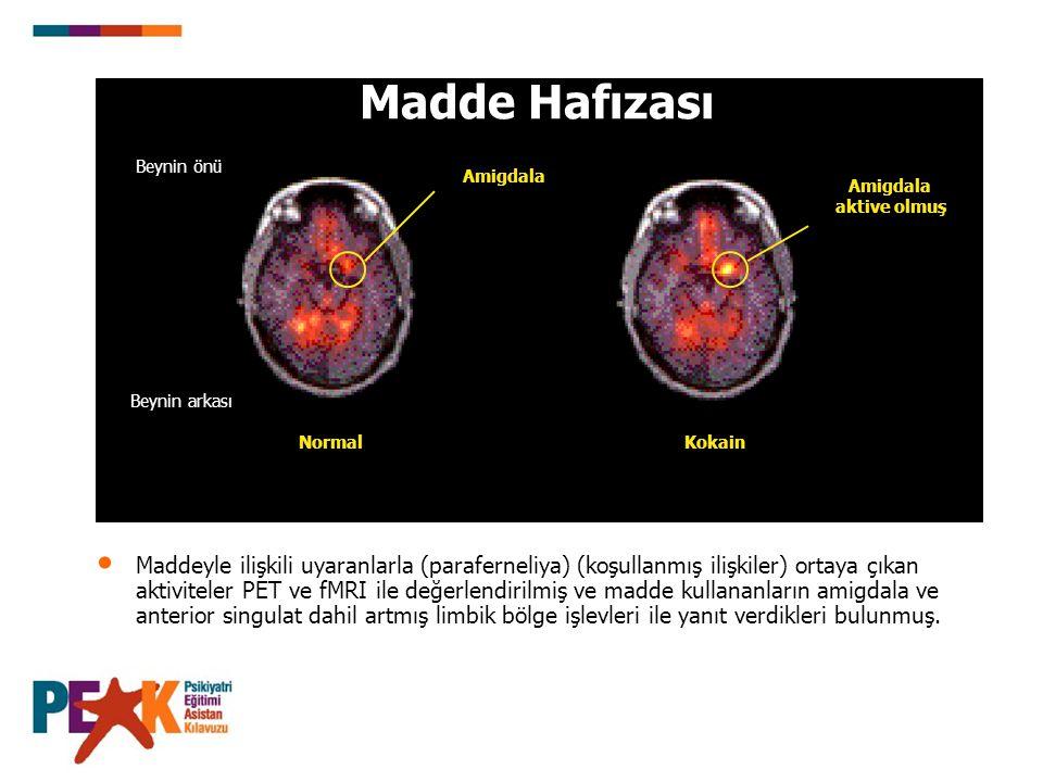 Madde Hafızası NormalKokain Beynin önü Beynin arkası Amigdala Amigdala aktive olmuş Maddeyle ilişkili uyaranlarla (paraferneliya) (koşullanmış ilişkil