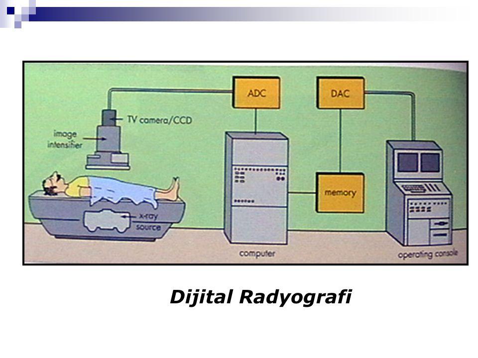Dijital Radyografi