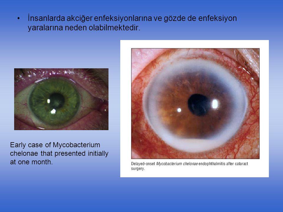 İnsanlarda akciğer enfeksiyonlarına ve gözde de enfeksiyon yaralarına neden olabilmektedir. Early case of Mycobacterium chelonae that presented initia