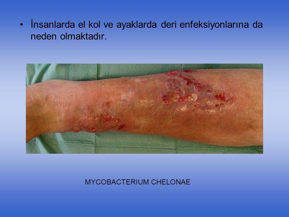 İnsanlarda el kol ve ayaklarda deri enfeksiyonlarına da neden olmaktadır. MYCOBACTERIUM CHELONAE