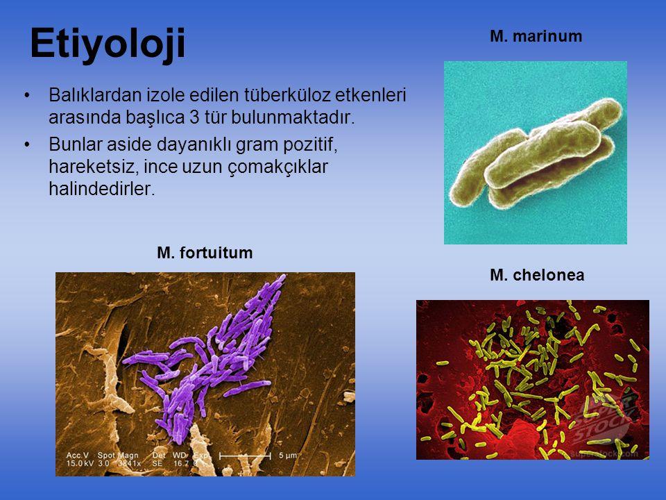 1- Mycobacterium marinum Aerob, sporsuz kapsülsüz, gram pozitif ve asido rezistens özellik gösterir.