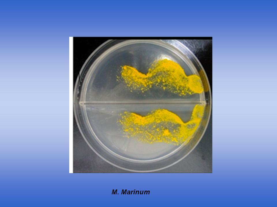 mycobacterium-chelonae-9984_ Mycobacterium_fortuitum_Ziehl (1)